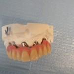 protesi-fissa-su-impianti-005