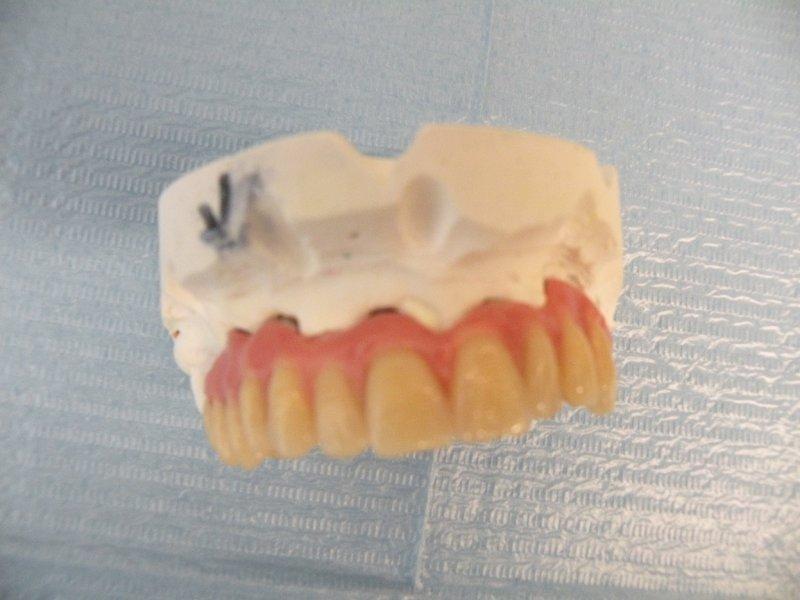 protesi-fissa-su-impianti-006